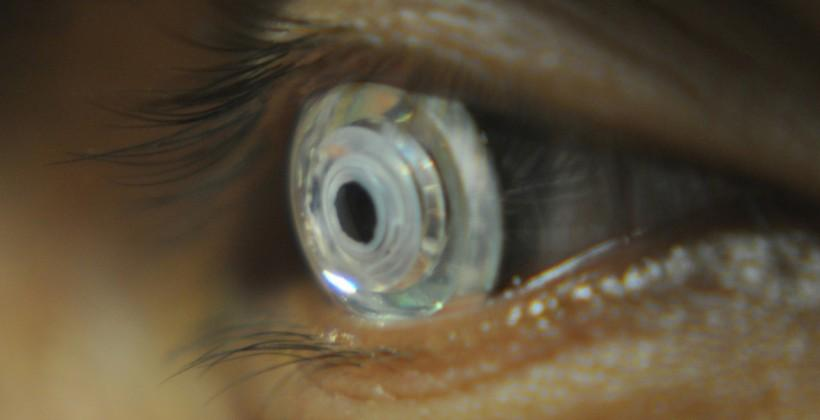 New contact lenses will help people see with inbuilt telescope