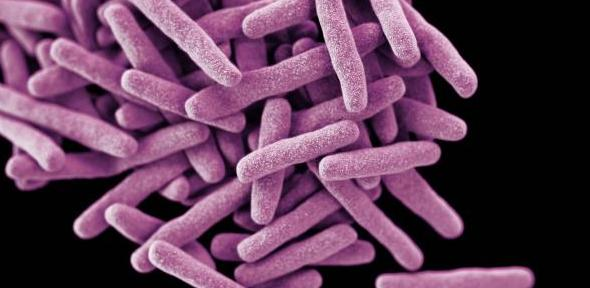 Drug-resistant TB threatens to kill 75 million people by 2050