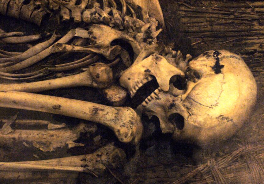 Oldest evidence of breast cancer found in Egyptian skeleton