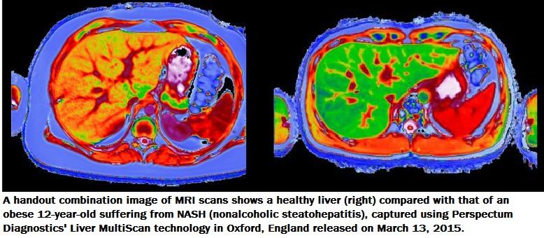 New market for liver disease spawns race for better testing