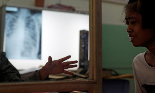 Indian doctors find success in tackling the 'invisible burden' of tuberculosis