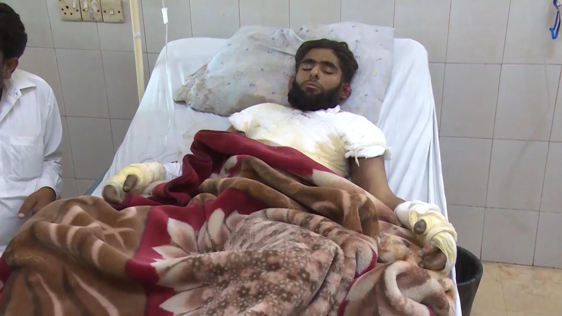 Student burnt alive 44 days ago dies in Karachi
