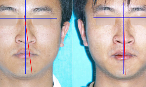 Deviated noses may be harder to correct than first thought