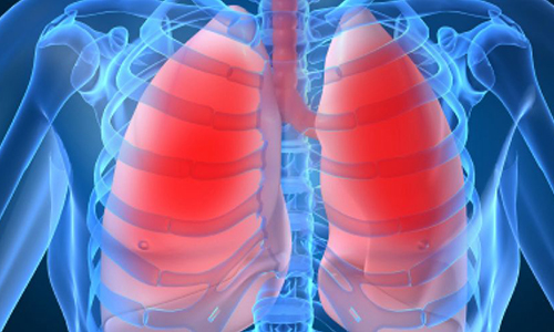 Chronic lung disease linked to greater risk for falls
