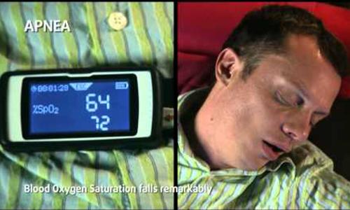 Sleep apnea tied to gout flares