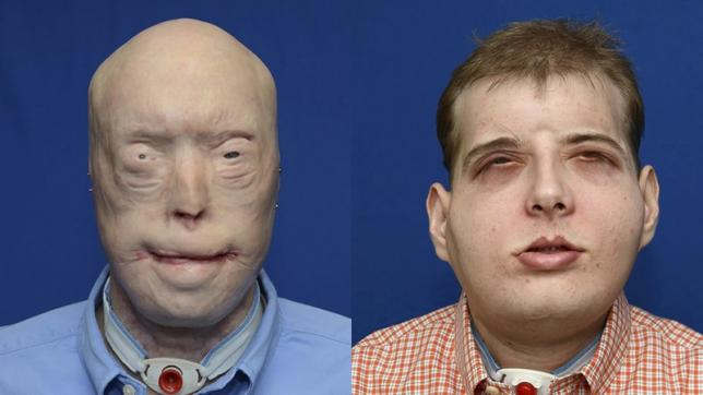 US firefighter gets world's most extensive face transplant