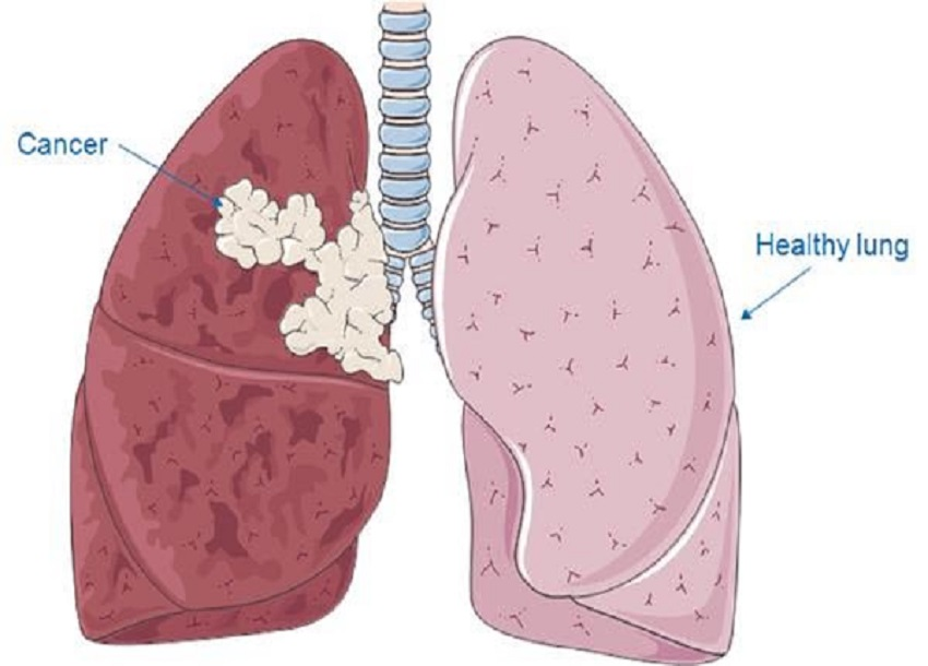 Lung Cancer Patients At Bigger Centers May Have