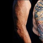 How tattoos can help patients with skin grafts and scars