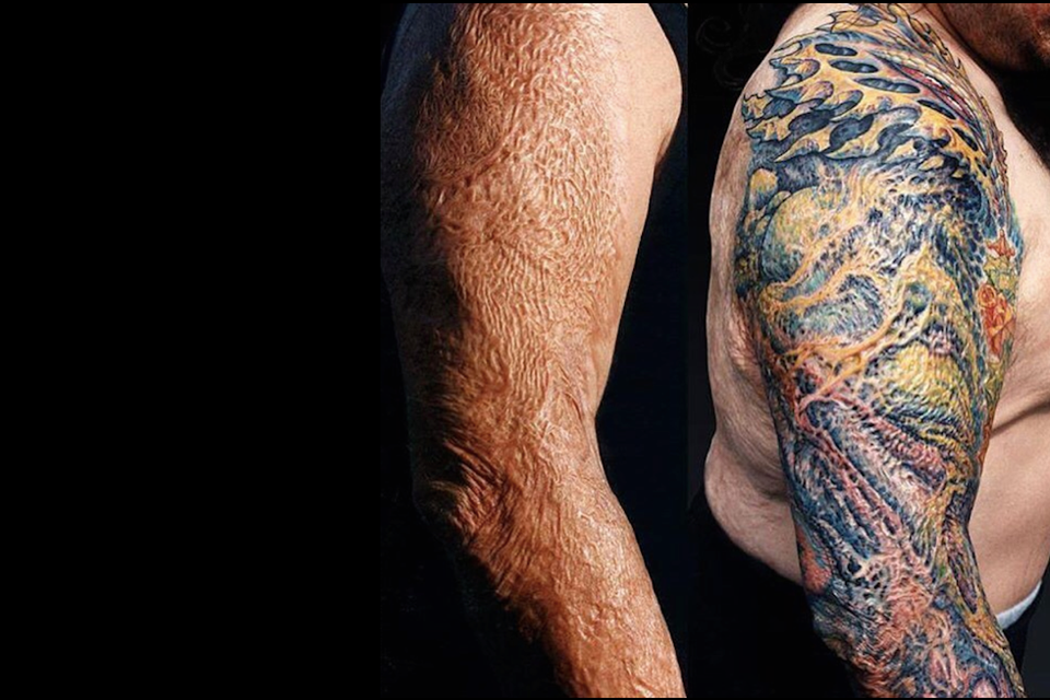 How tattoos can help patients with skin grafts and scars - 92 News ...