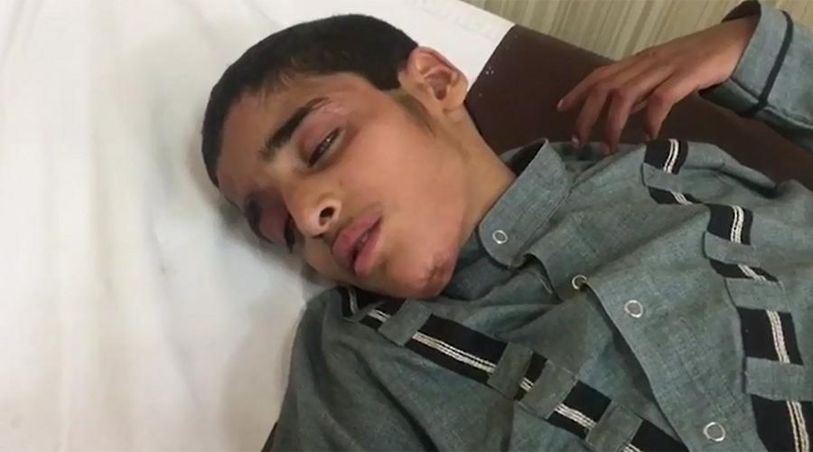 Fake female 'faith healer' put boy on burning coals, victim hospitalized