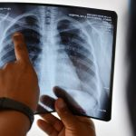 Tuberculosis deaths fall in Europe
