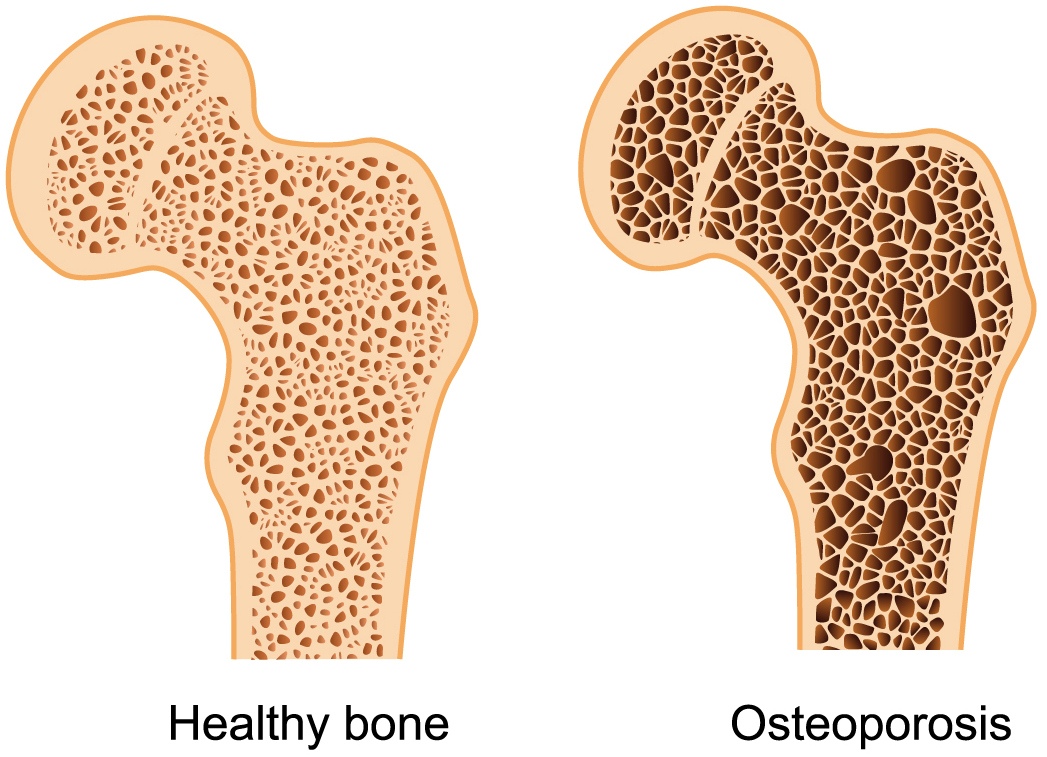 insulin resistance linked to lower bone density