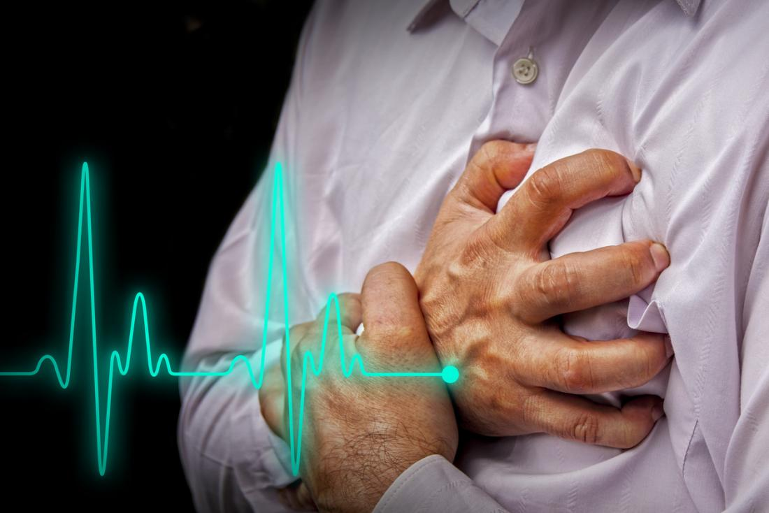 Onsite defibrillators helping to increase cardiac arrest survival