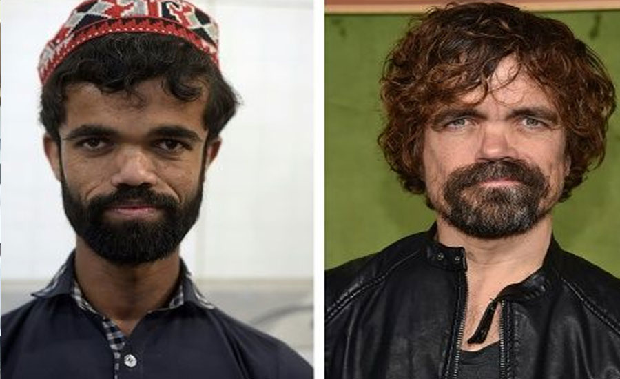 Pakistani Rozi Khan famed for uncanny resemblance to Tyrion Lannister